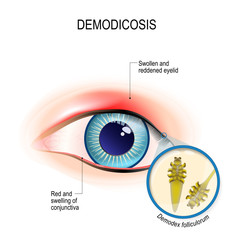 demodicosis of eyelid and red eyes. Close-up demodex through magnifying glass