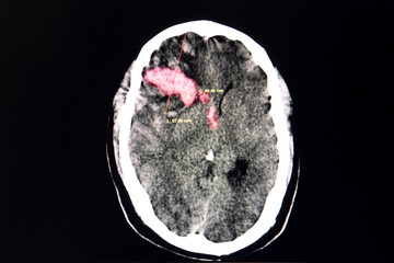 Brain CT scan,  intracerebral hemorrhage