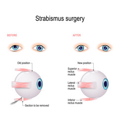 Strabismus Surgery. Hypertropia. Eye muscle recession.
