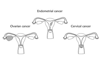 Ovarian, endometrial and cervical cancer. Human realistic uterus. Anatomy flat illustration. Thin line image, white background. Gynecological diseases.