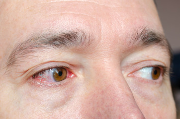 Closeup irritated infected red bloodshot eyes, conjunctivitis