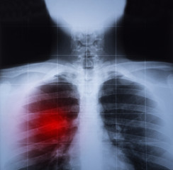 X ray image of chest and lung disease highlighted in red