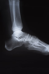 Medical X ray image of foot