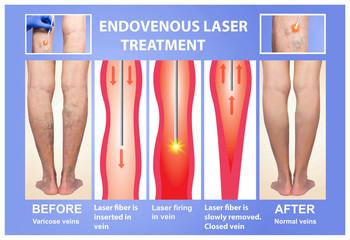 Varicose Veins. Endovenous laser treatment of female legs