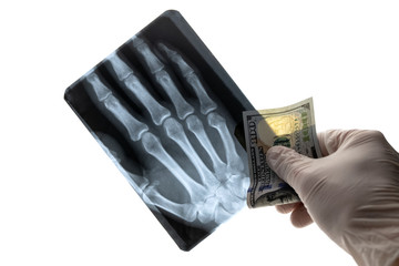 A man in a medical glove is holding a hundred US dollars and an X-ray picture of the fingers of his hand on a white background. Concept hospital and expensive treatment, medicine and corruption.