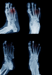 amputee foot x-ray image in many view