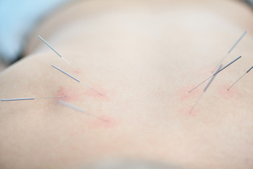 Alternative medicine. Close-up of female back with steel needles during procedure of acupuncture therapy.