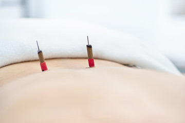 Woman being treated with acupuncture and moxibustion treatments