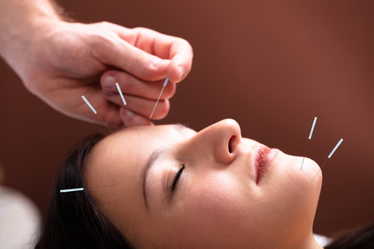 Woman Receiving Acupuncture Treatment On Her Face