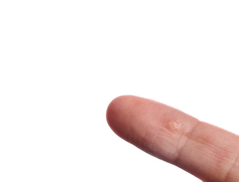 Finger on hand with wart close up, isolated on white background