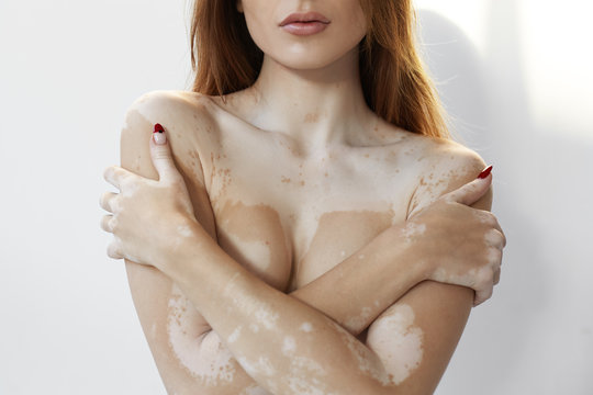 Portrait of gorgeous European woman with manicure and loose hair posing naked, crossing arms on her chest, suffering from chronic skin condition problem, having white pale patches on her body