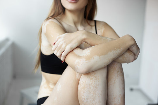 Horizontal cropped portrait of unrecognizable young female having white depigmented patches all over her slim body, sitting with hands on knees dressed in black underwear. Different beauty standards
