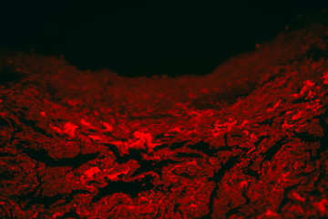 tuberculoid granuloma of hunman