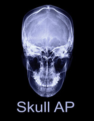x-ray image of Human skull  AP view or front view isolated on Black Background. Clipping path