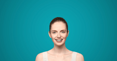 girl with braces smiling broad smile