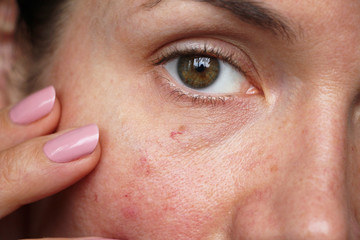 capillaries on the skin of the face,