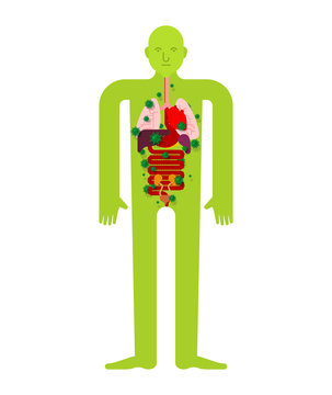 Sick internal organ Anatomy of human disease. Heart and Lungs. Liver and stomach. Esophagus and pancreas. Kidney and spleen. Aching Viruses and bacteria. Person ailing