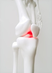 Osteoarthritis-covered knee - 3D Rendering