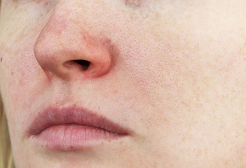 Cuperosis on the nose of a young woman. Acne on the face. Examination by a doctor