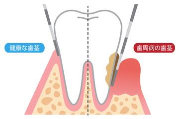 歯周病の歯茎と健康な歯茎