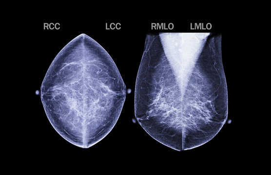 Basic position X-ray Digital Mammogram both side name is CC view and MLO . mammography or breast scan for Breast cancer.Clipping path.