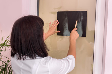 Doctor traumatologist exams patient's x-rays and pointing by pen