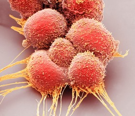 Close up of prostate cancer cells