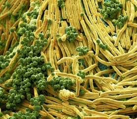 Close up of bacteria found on mobile phone