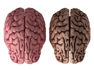 Close up of healthy and unhealthy brain