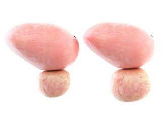 Illustration of a healthy and an enlarged prostate
