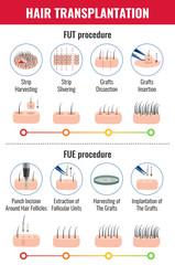 Hair Transplantation Infographics