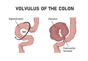 volvulus of the colon