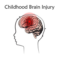 Braim injury in infants, childhood. Vector medical illustration. Kid, baby. White background, line silhouette of child head, anatomy flat image of damaged human brain.