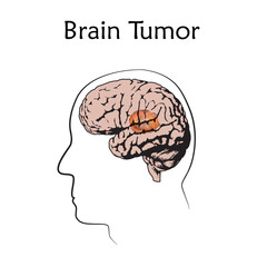 Brain tumors, cancer. Vector medical illustration. White background, line silhouette of man head, anatomy flat image.