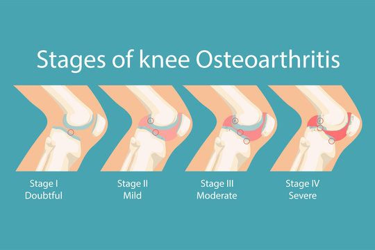 Stages of knee Osteoarthritis. Human Knee Osteoarthritis infographics. Vector illustration.