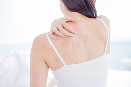 woman scratching shoulder and neck