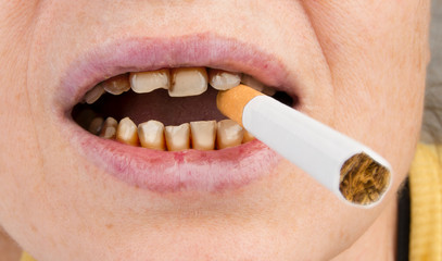 a woman holds a cigarette in her mouth with bad teeth. Concept of smoking harmful effect.