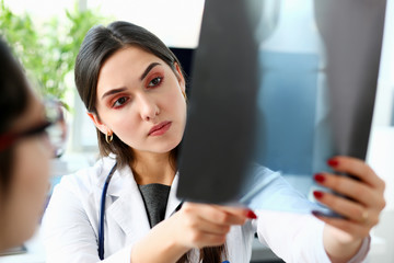 Female beautiful doctor hold in arm and look at xray