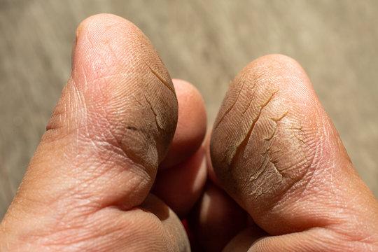 Woman's  toe break skin on wood, Close up & Macro shot, Selective focus, Asian body skin concept