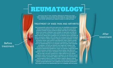 Illustration Treatment of Knee Pain and Arthritis