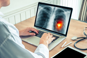 Doctor working on a laptop with x-ray of lungs. Cancer of lungs and cigarette prevention