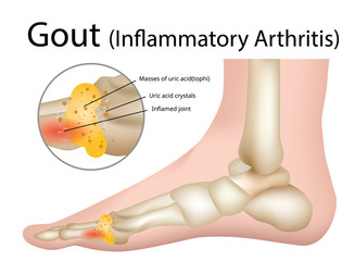 Gout (Inflammatory arthritis) Gout is an intensely painful type of arthritis , Illustration - Vector