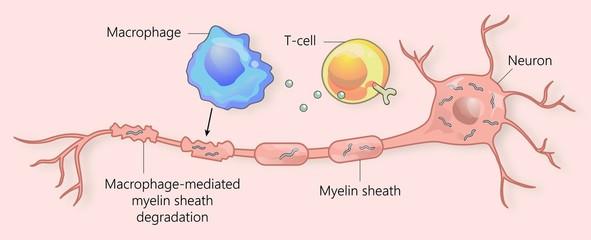 Multiple sclerosis and myelin sheath breakdown