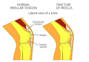 Vector illustration of a healthy knee joint and an unhealthy knee with a fracture of patella problem. Anatomy of the human knee, side view of the bent knee