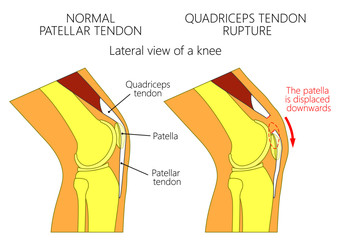 Vector illustration of a healthy knee joint and an unhealthy knee with a quadriceps tendon rupture problem. Anatomy of the human knee, side view of the bent knee
