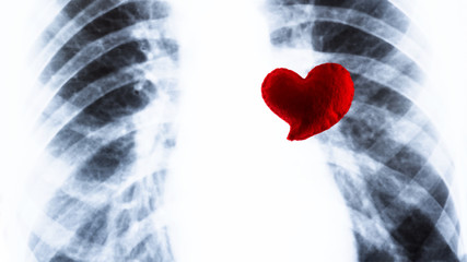 Souvenir red heart lies on the chest X-ray. Fluorography and Valentine's Day in medicine. Concept of heart surgery or cardiac problems.
