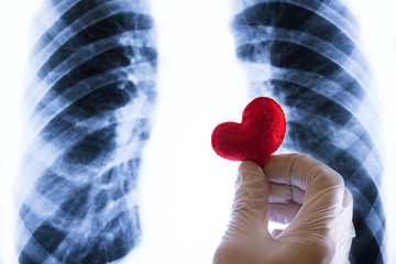 Closeup of medic's hand in white glove with a souvenir red heart over chest x-ray. Day of the cardiologist, radiologist or St. Valentine in medicine. Concept of love or illness.
