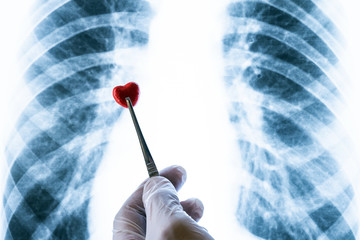A hand in a white glove holds a red red heart tweezers over a chest x-ray. Day of the cardiologist, radiologist or phthisator. The concept of prevention of tuberculosis disease or cardiac surgery.