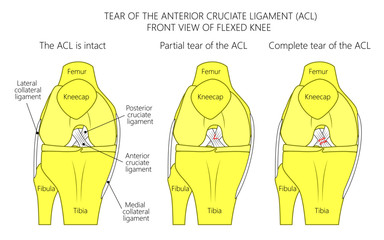 Vector illustration of a healthy knee joint with intact, partial tear of anterior cruciate ligament and complete tear of ACL. Anterior or front view of flexed knee. For medical publications.