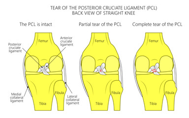Vector illustration of healthy knee joint with intact ligaments, partial tear of posterior cruciate ligament, complete tear of PCL. Posterior view of straight knee. For medical publications